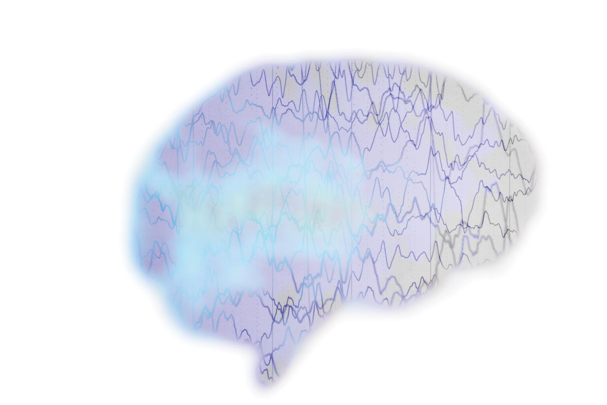 brain with graph lines and cloud inside