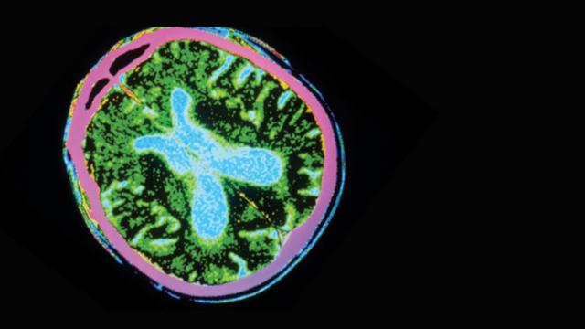 brain imaging of parkinson's