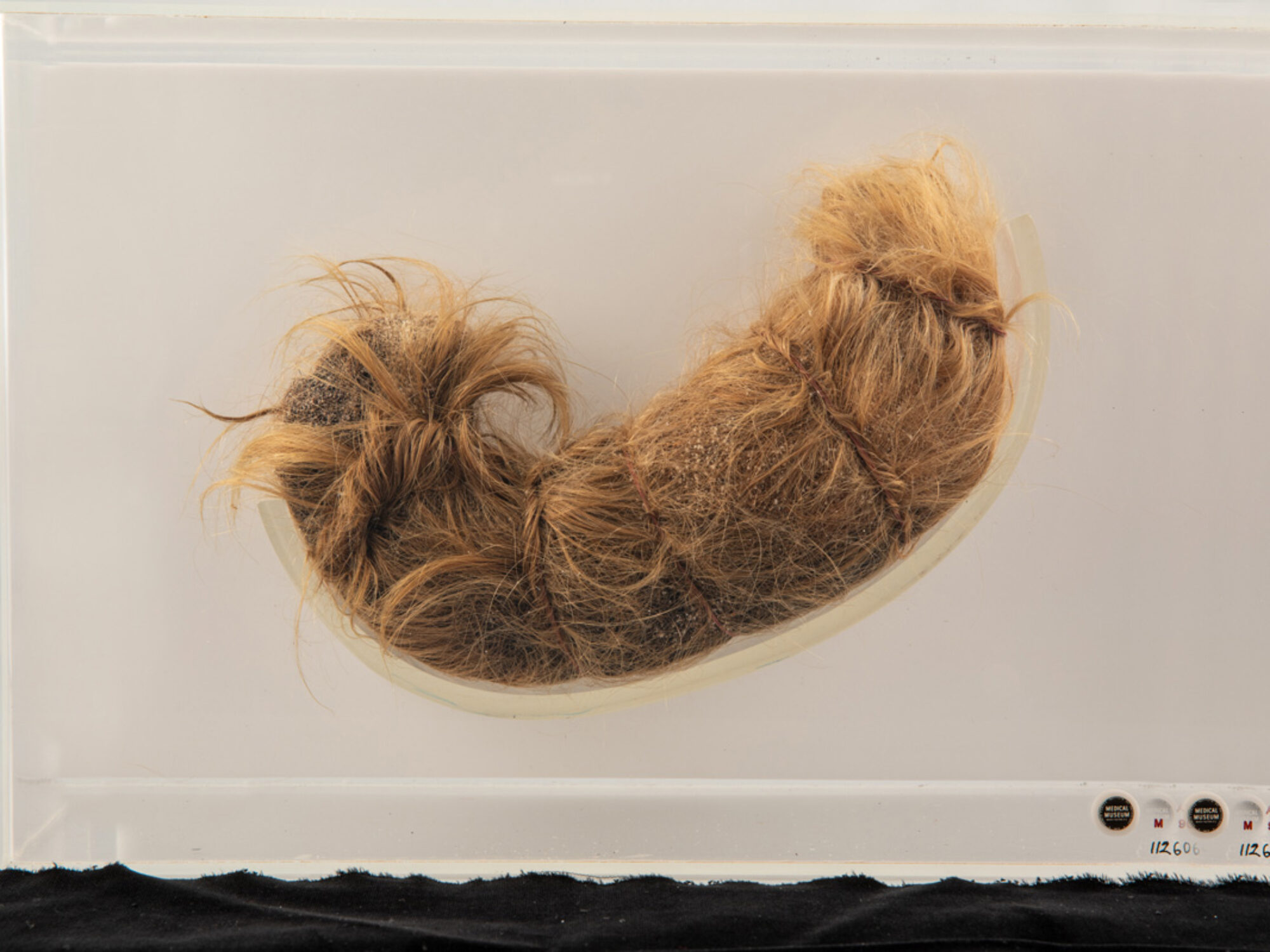 This legendary stomach-shaped hairball from the collection at the National Museum of Health and Medicine in Silver Spring, Maryland, was removed from a 12-year-old girl.